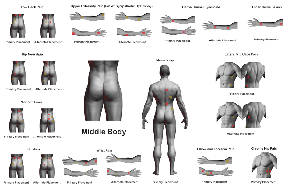 middle-body