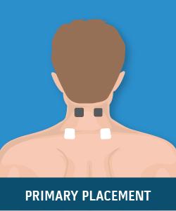 Chronic Cervical Strain