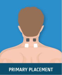 Chronic Cervical Spine Pain