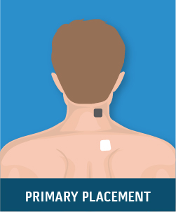 Unilateral Cervical Spine Pain