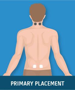 Degenerative Arthritis (Cervical and Lumbar)