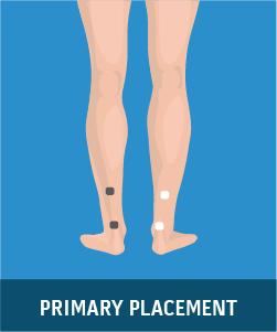 Lower Leg Pain (Diabetic Neuropathy)