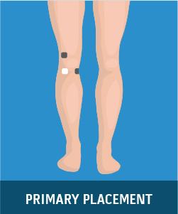 Degenerative Arthritis (Knee)