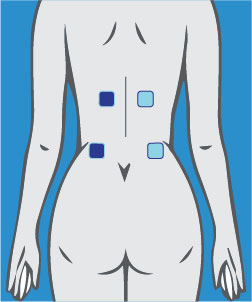 TENS Machines Pad Location Labour Pain