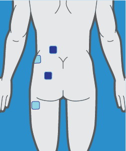 Tens Pads Positioning